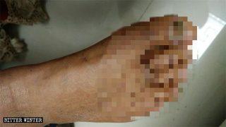 餓刑、電刑致後遺症:青年老年基督徒被捕均遭殘忍酷刑