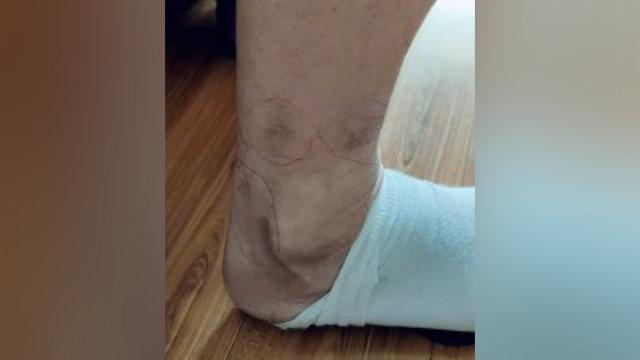趙剛腿上留下的電擊疤痕(知情人提供)